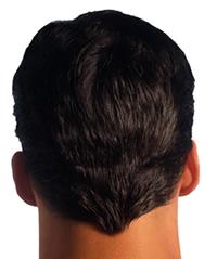 Hair Loss Treatment   Hair Transplantation   Alopecia Treatment   Manhattan   New York City (NYC)