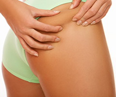 Cellulite Treatment | Cellulite Reduction | Cellulite Reduction | Manhattan | New York City (NYC)