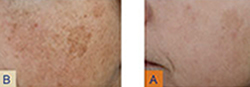 Laser Treatments | Photo Gallery | Manhattan | New York City (NYC)