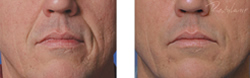Cosmetic Injections | Photo Gallery | Photo Gallery | Manhattan | New York City (NYC)