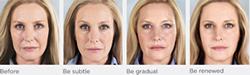 Victor Dermatology and Rejuvenation | Photo Gallery | Manhattan | New York City (NYC)